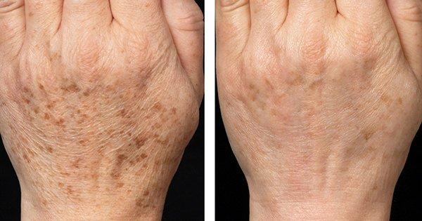 6 действенных средств для борьбы с пигментными пятнами. Твоя кожа обретет равномерный цвет!