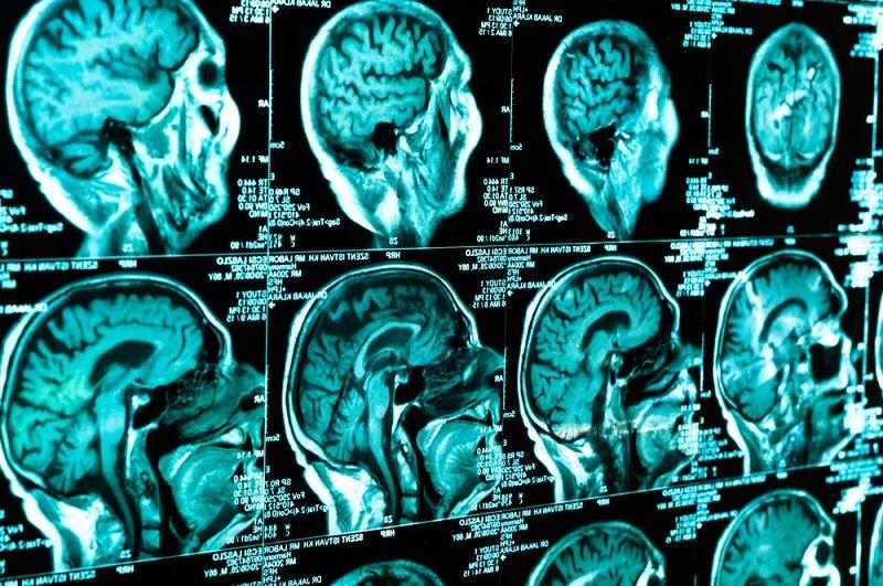 наталья бехтерева нейрофизиолог