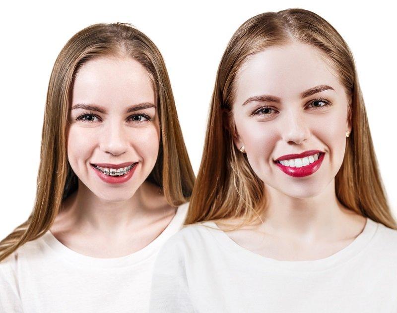 Брекеты можно устанавливать даже в 40 лет! Вся правда о голливудской улыбке.