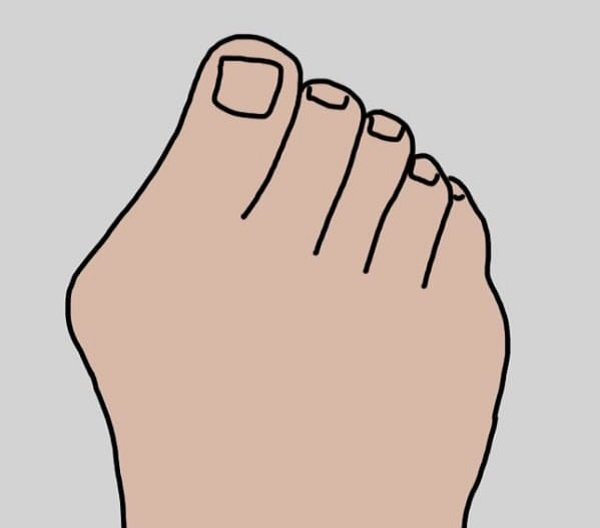 кост на крака