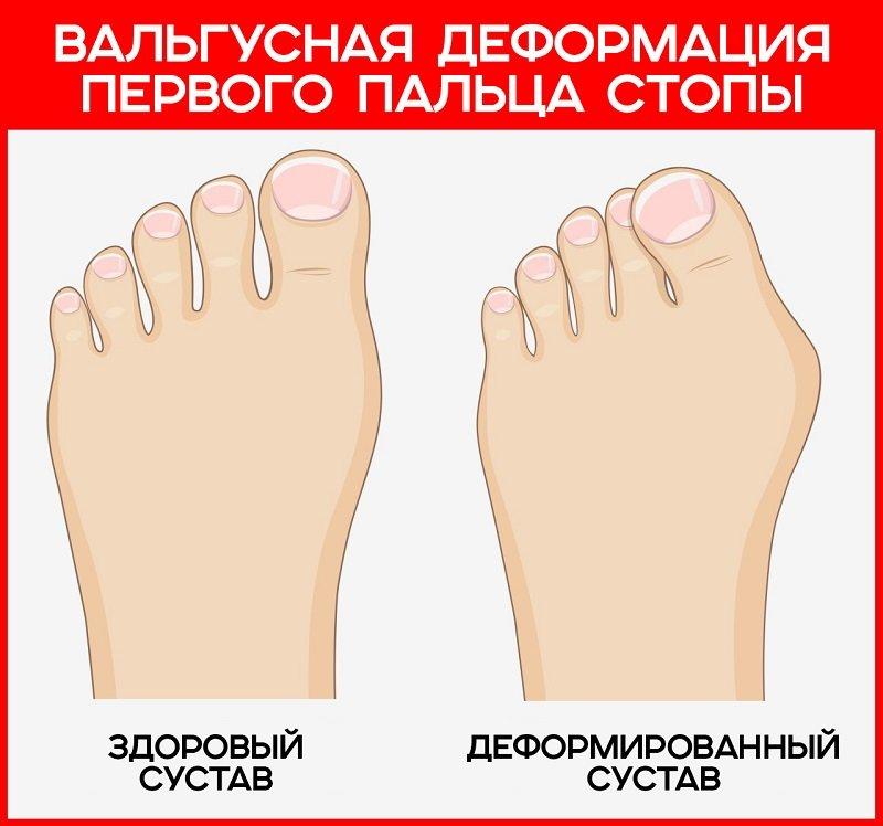 Болят косточки на пальцах ног что делать Лечение суставов