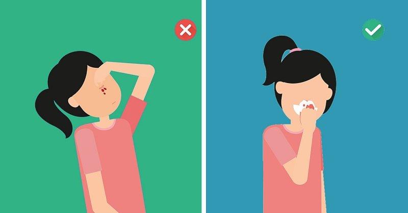 как правильно остановить носовое кровотечение