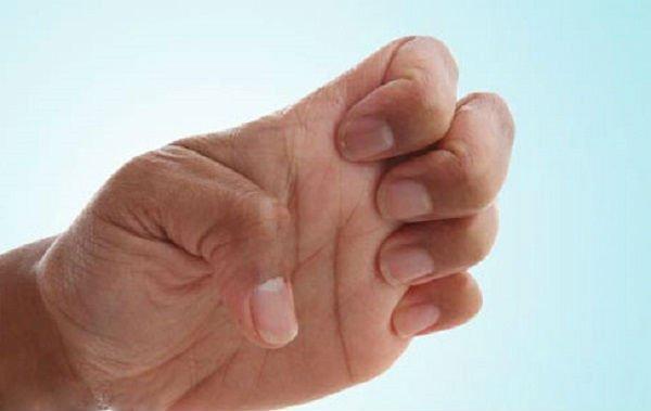 лечебная гимнастика для рук при артрите
