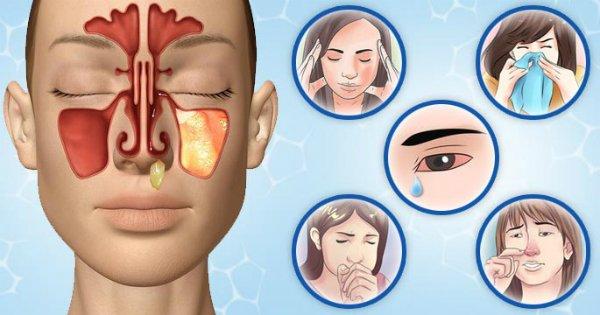 чем лечить заложенный нос