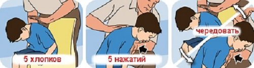 """Результат пошуку зображень за запитом """"Если ребенок подавился, он может умереть. Запомни действия в опасной ситуации!"""""""
