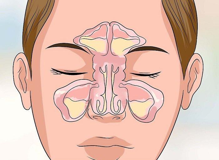 точечный массаж при гайморите и насморке