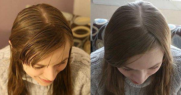 Она отказалась от шампуня на целых 6 месяцев. Результат превзошел все ожидания!