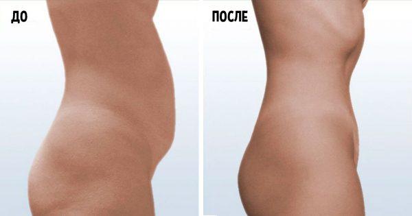 Высокожировая низкоуглеводная диета LCHF: похудение с удовольствием!