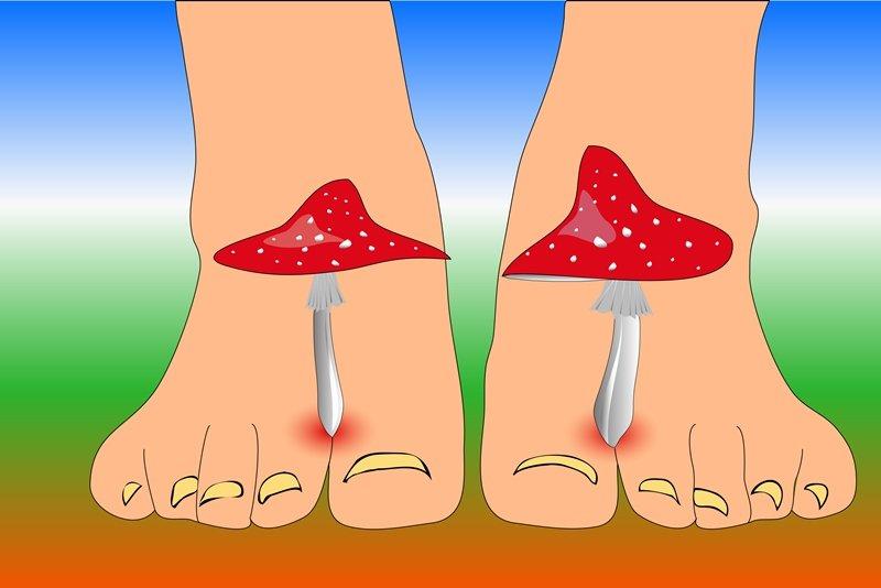 домашнее лечение грибка ногтей