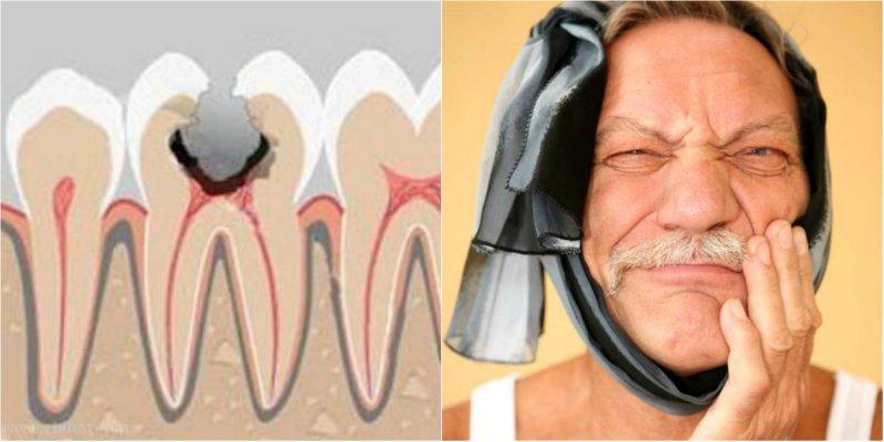 Средство от зубов в домашних условиях