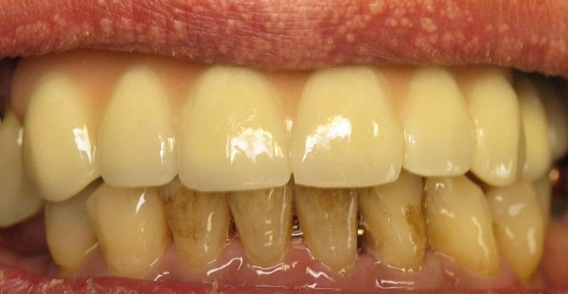 отбеливание зубов может ли навредить им
