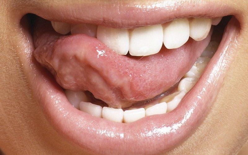 домашний способ отбеливания зубов