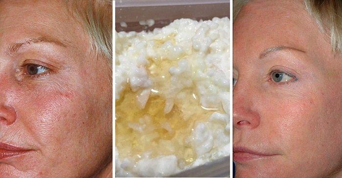 антивозрастной уход за кожей