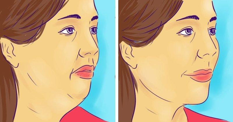 Как избавиться от второго подбородка с помощью одного укола: личный опыт