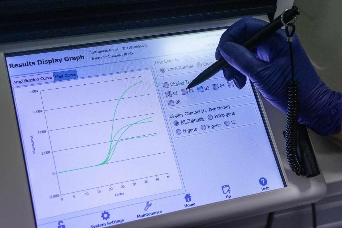 Экспресс-тест на антитела к коронавирусу: особенности и применение