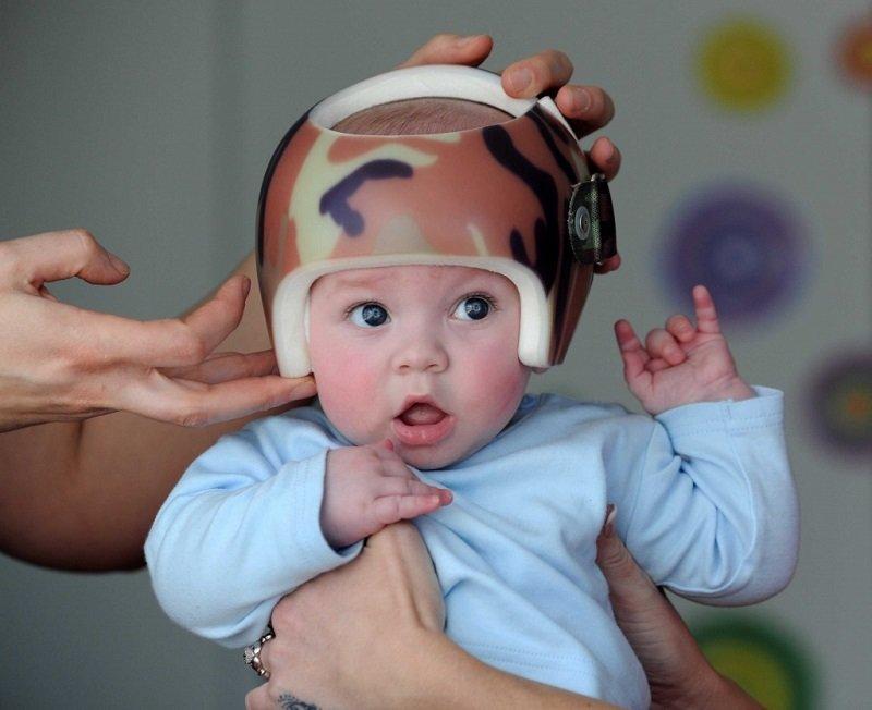 Форма черепа у ребенка 97