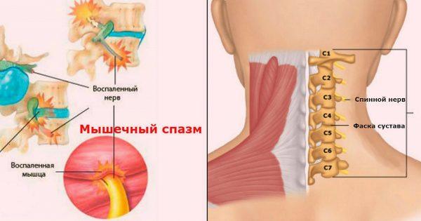 Мышечные зажимы шеи и спины: избавилась раз и навсегда!