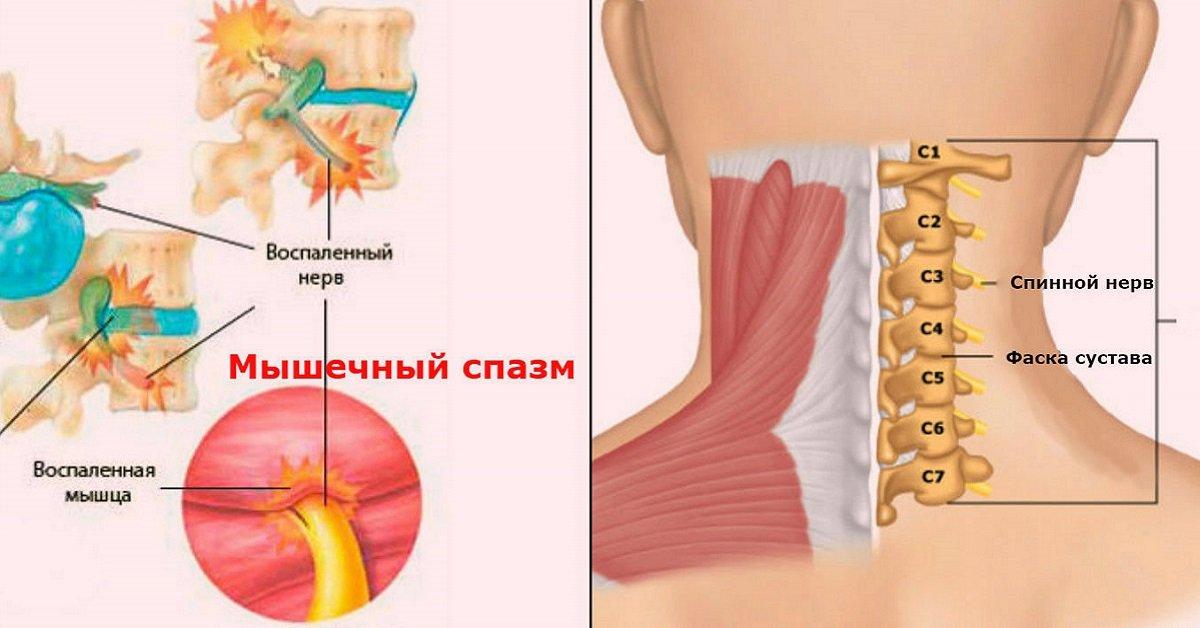 Остеохондроз шейный отдела позвоночника симптомы и лечение
