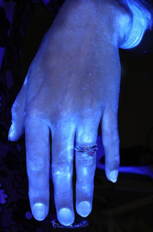 микробы на руках человека