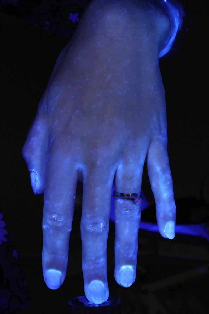 микробы на руках фото