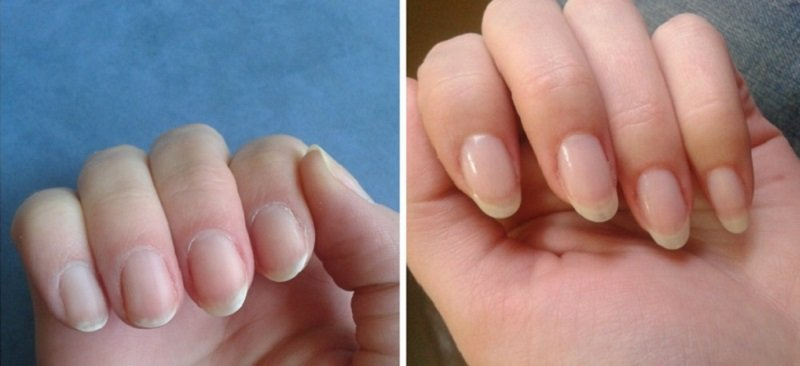 как отрастить ногти за неделю
