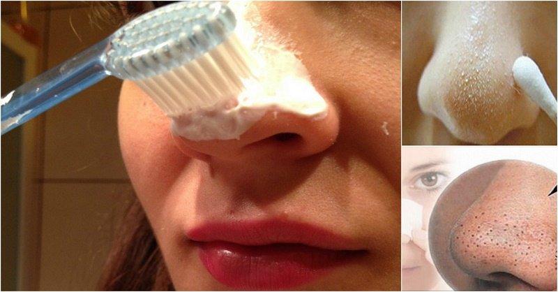 Как убрать черные точки на носу - Рецепты в домашних 22