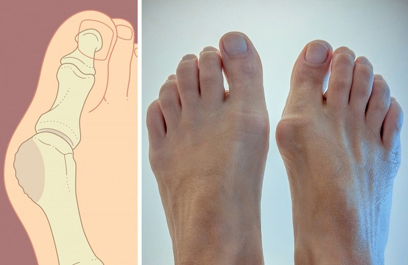 Как называется для косточки на ноге