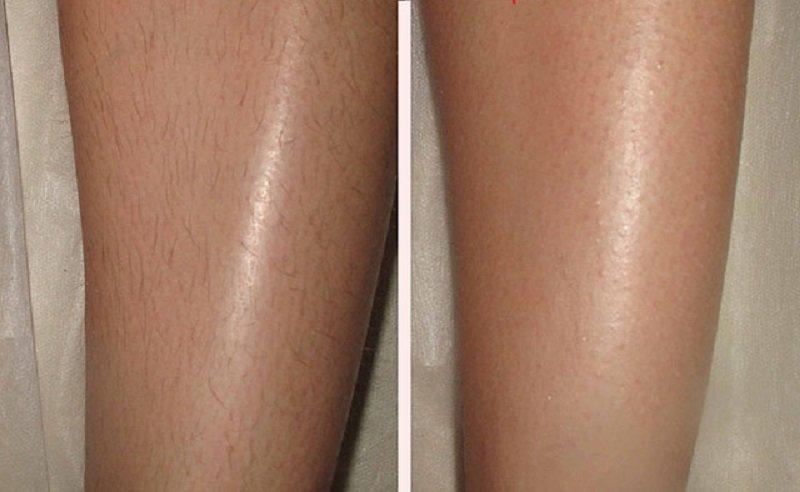 Kā uz ilgu laiku atbrīvoties no nevēlamajiem matiņiem: gluda āda pat pēc 14 dienām