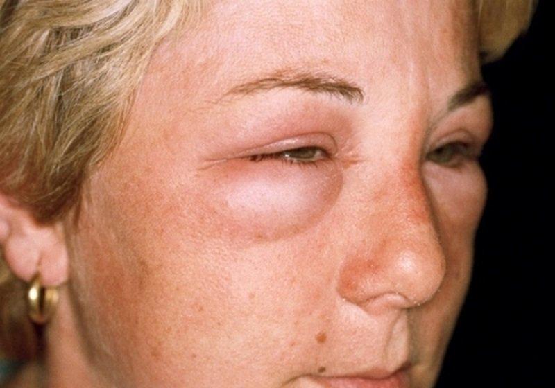 как проявляется аллергия у кошек фото