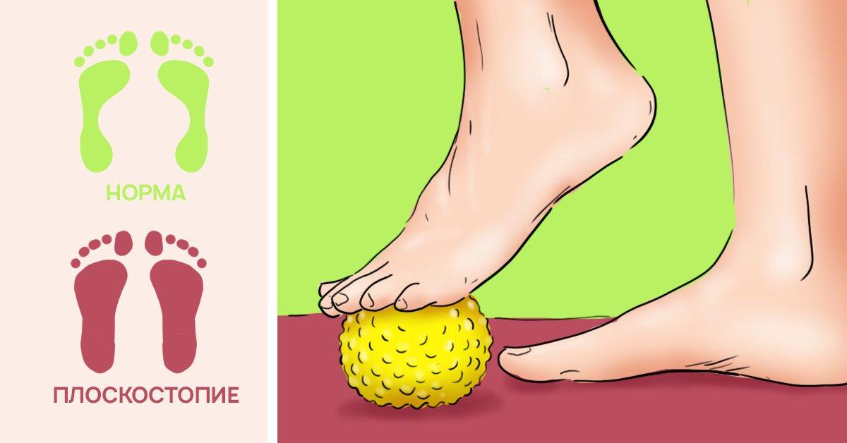 Как лечить плоскостопие в домашних условиях