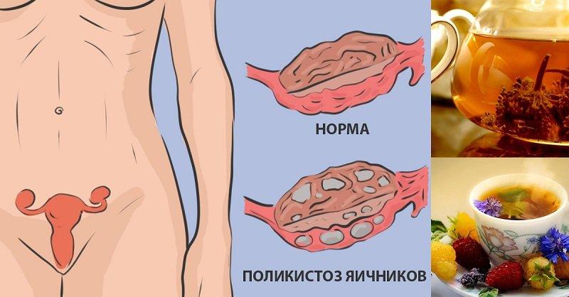 поликистоз яичников диета