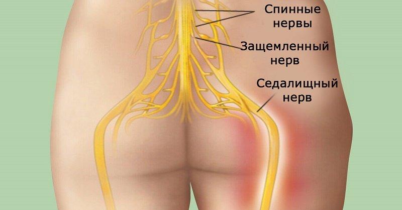как лечить воспаление нерва