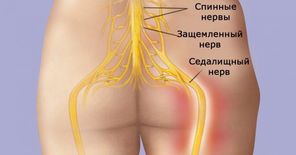 Попрощайся с болью в спине! Это натуральное средство гарантирует успех в 95 % случаев…