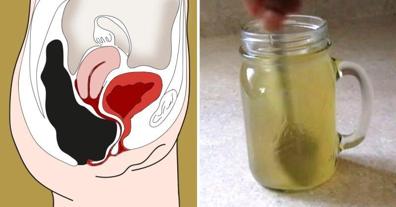 Очищения кишечника без клизмы в домашних условиях