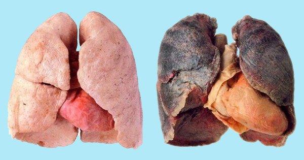 Как очистить легкие после курения: 4 способа, которые выведут токсины из организма!