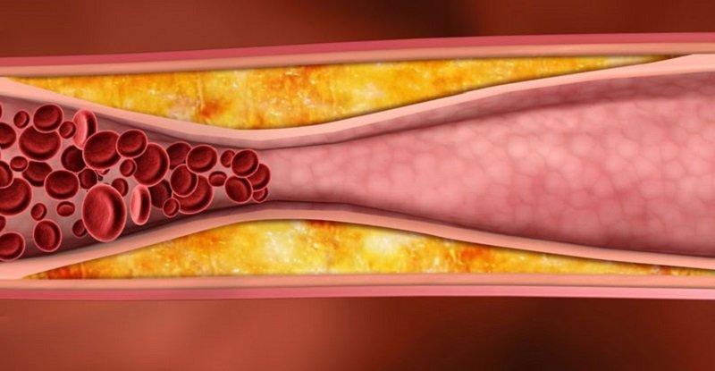 очистить сосуды от холестерина препараты