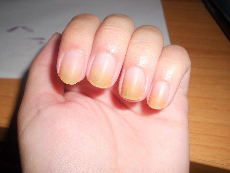 заболевание по ногтям