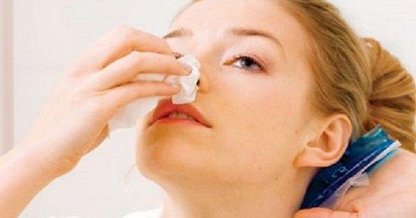 Как остановить носовое кровотечение. Это должен знать каждый!