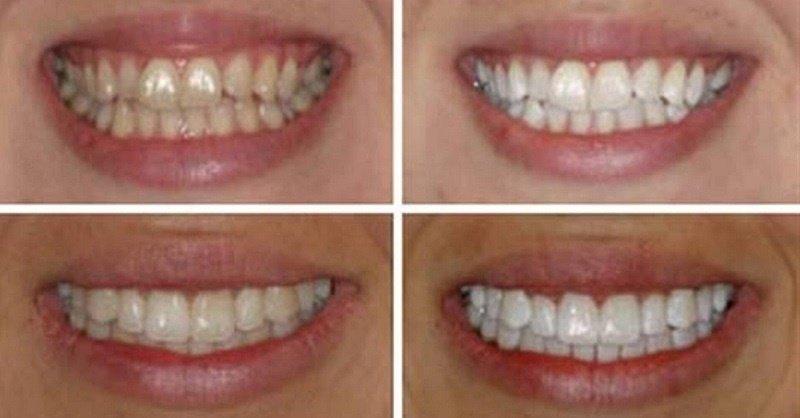 Очистить темный налет с зубов