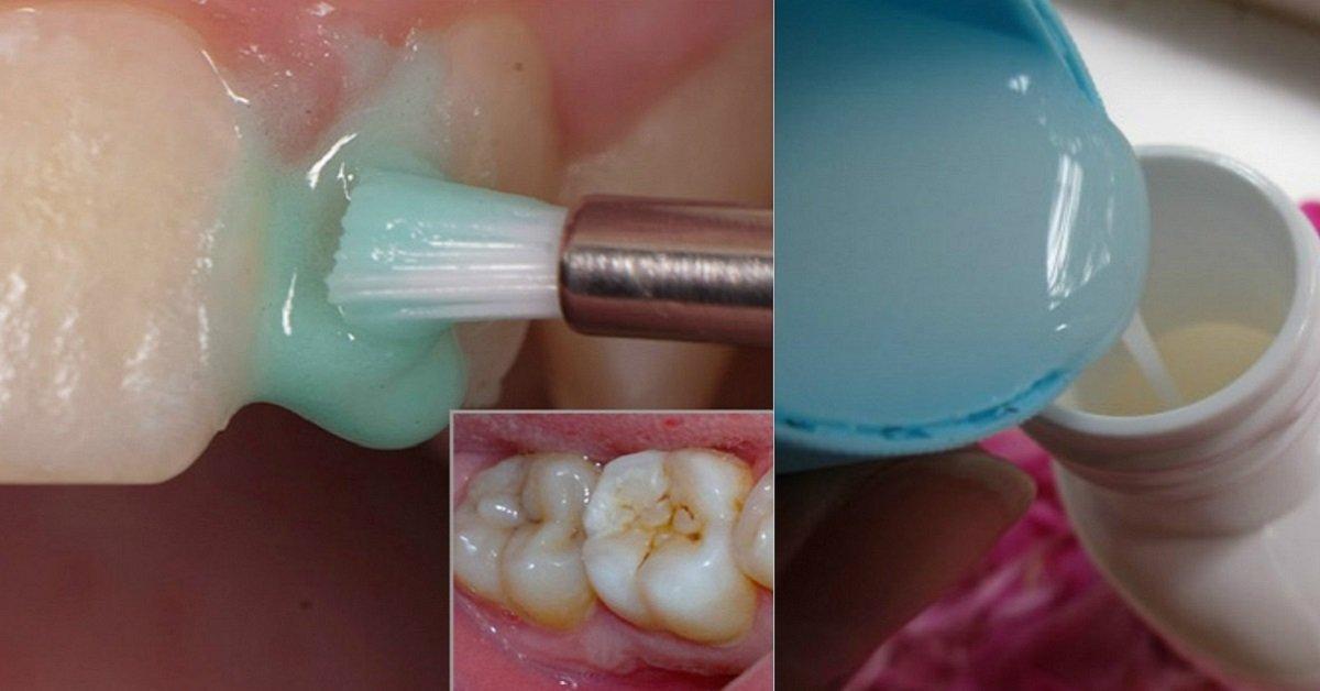 отбеливание зубов советы