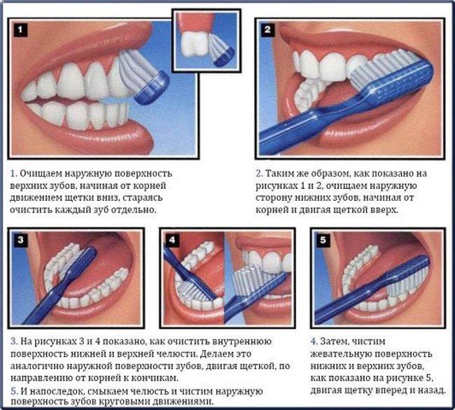 пломбы после отбеливания зубов