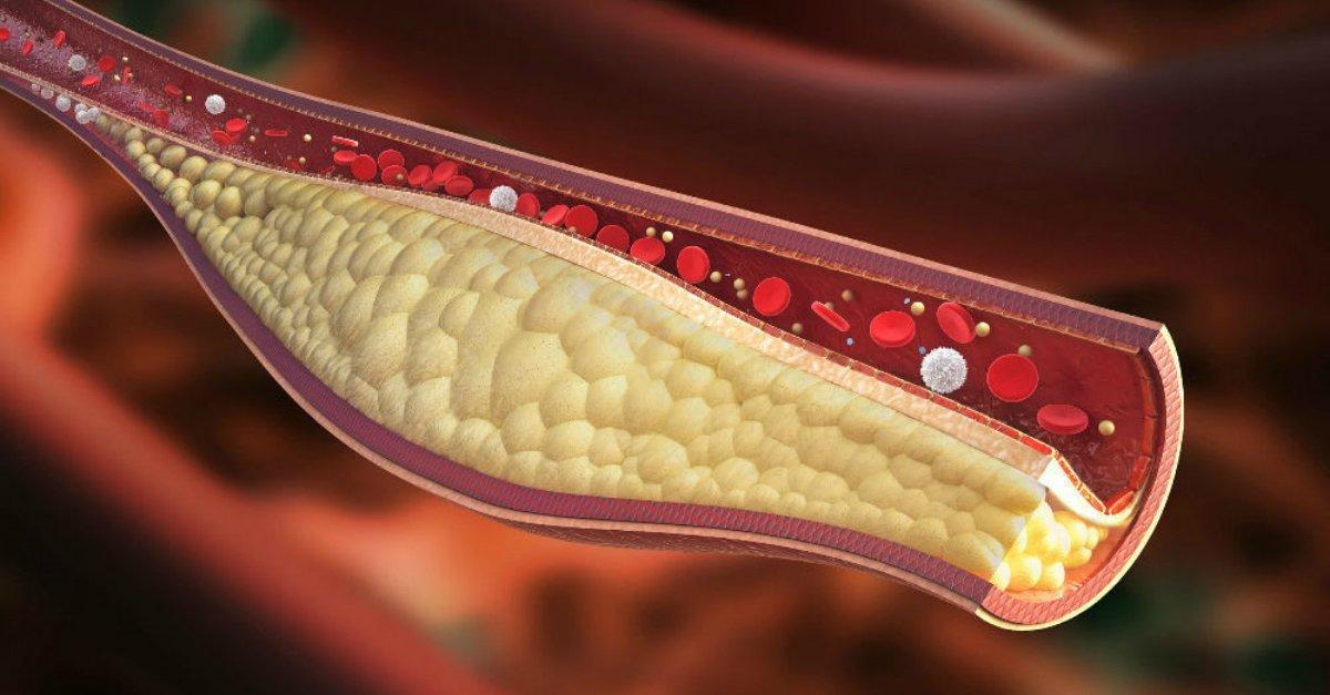 как очистить сосуды от холестерина в домашних