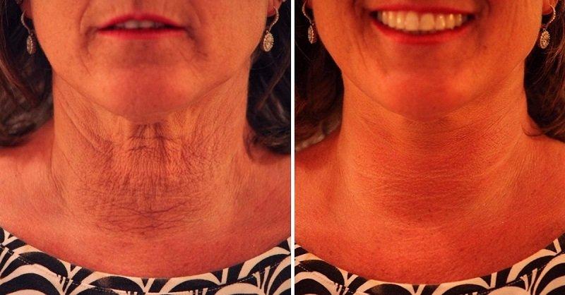 подтянуть дряблую кожу шеи