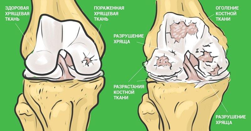Восстановление суставов желатином лечение при болях в тазобедренном суставе