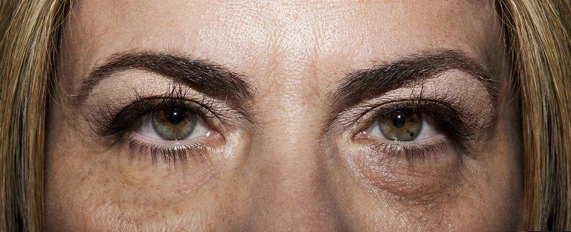 Синяки под глазами от недосыпания