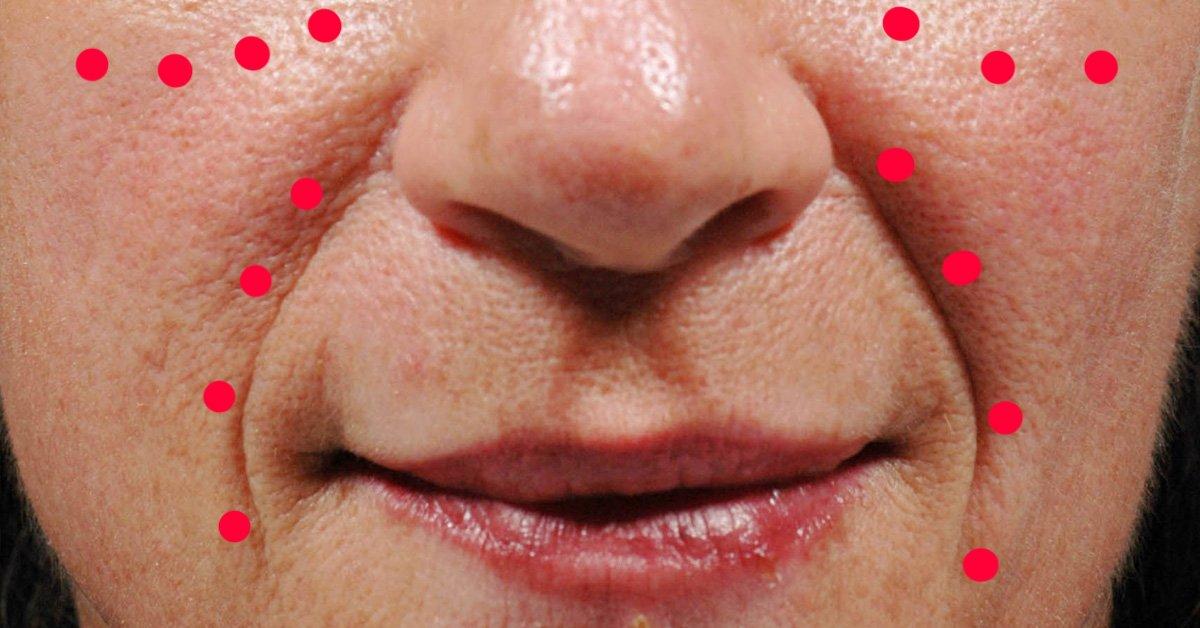 Что делать, если обнаружились морщины на щеках?