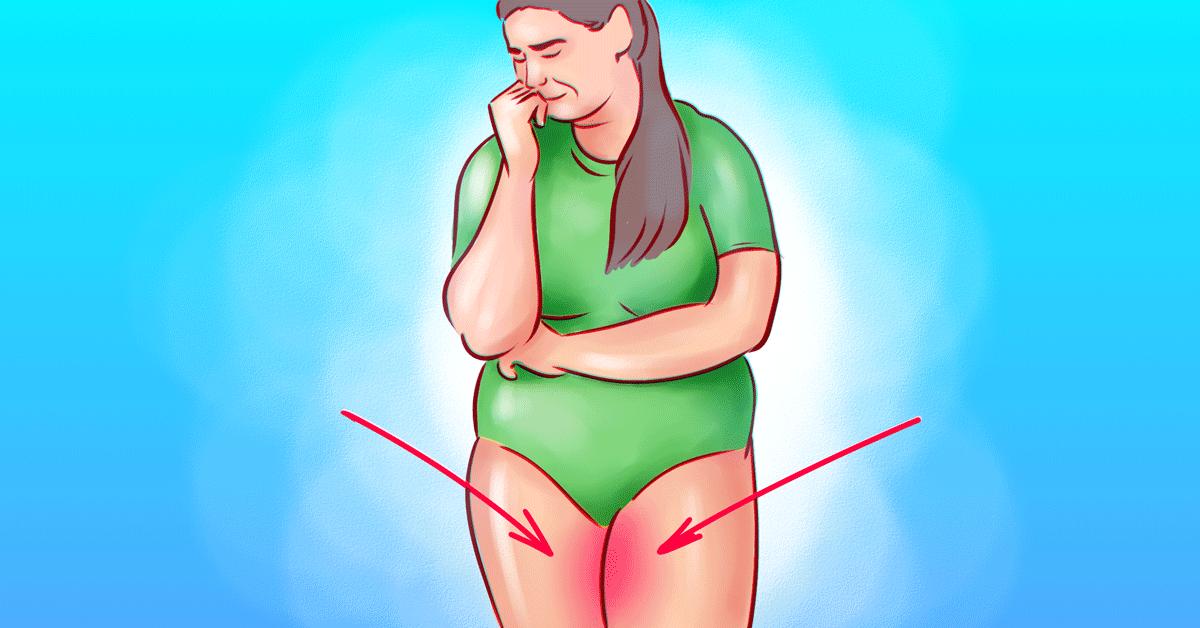 Как избавиться от потертостей на внутренней стороне бедер