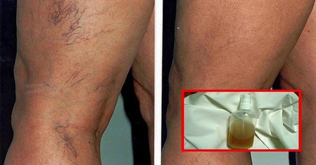 Что делать если лопнули капилляры на ногах