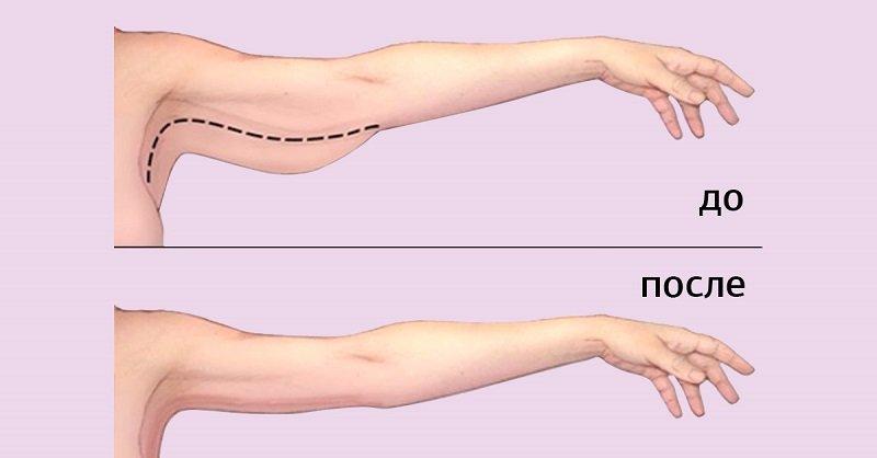 обвисшая кожа рук