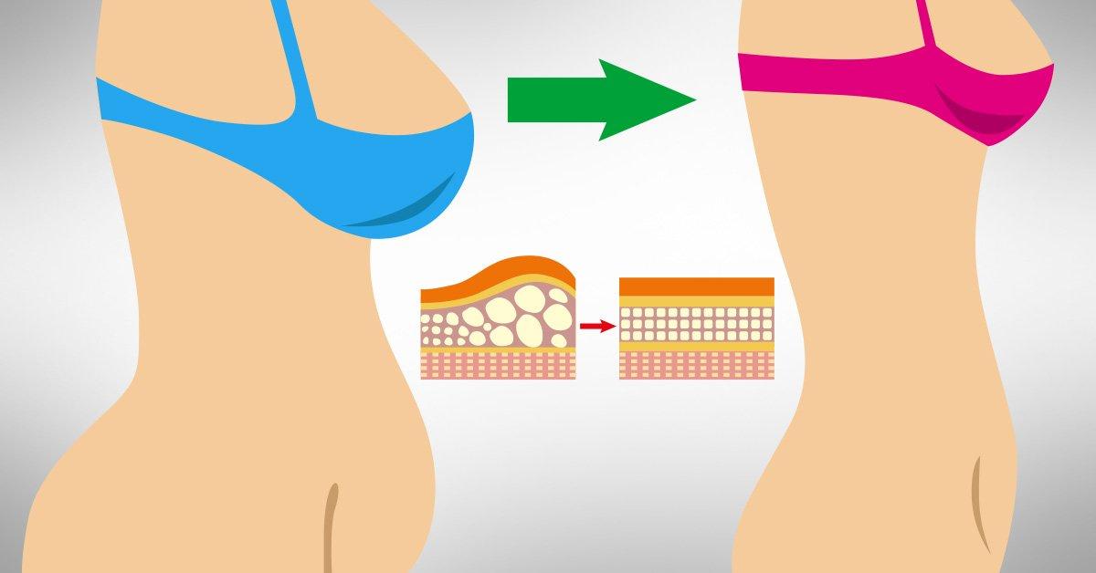 убрать жир с живота с помощью массажа
